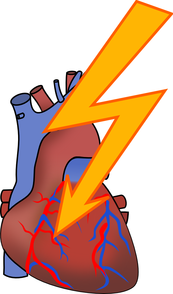 Heart Attack Clip Art