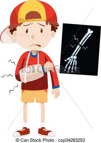 ... Sad boy with broken arm illustration