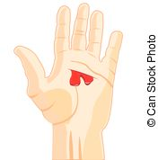 . ClipartLook.com Wound on hand - The Palm of the person with wound and.